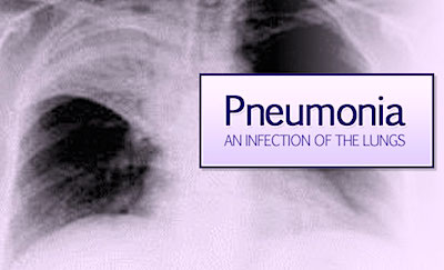 pneumonia, an infection of the lungs